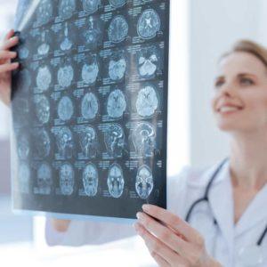 POSTGRADO-EXPERTO-EN-NEUROLOGIA